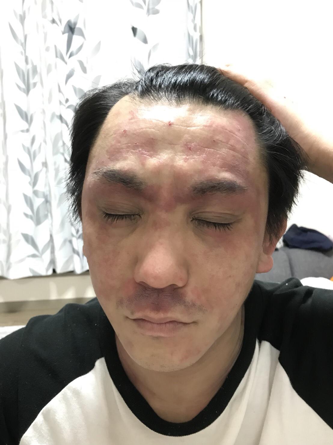 アレルギー美容師